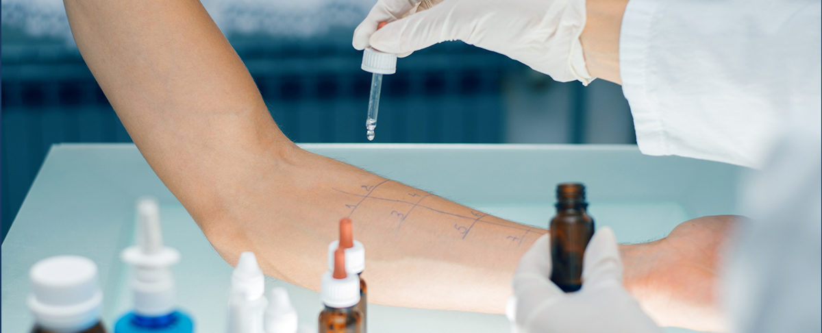 4 rodzaje testów alergicznych