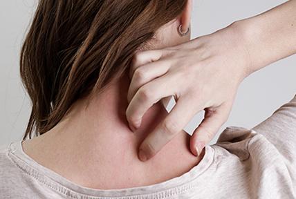 Alergiczne kontaktowe zapalenie skóry- przyczyny, objawy, leczenie