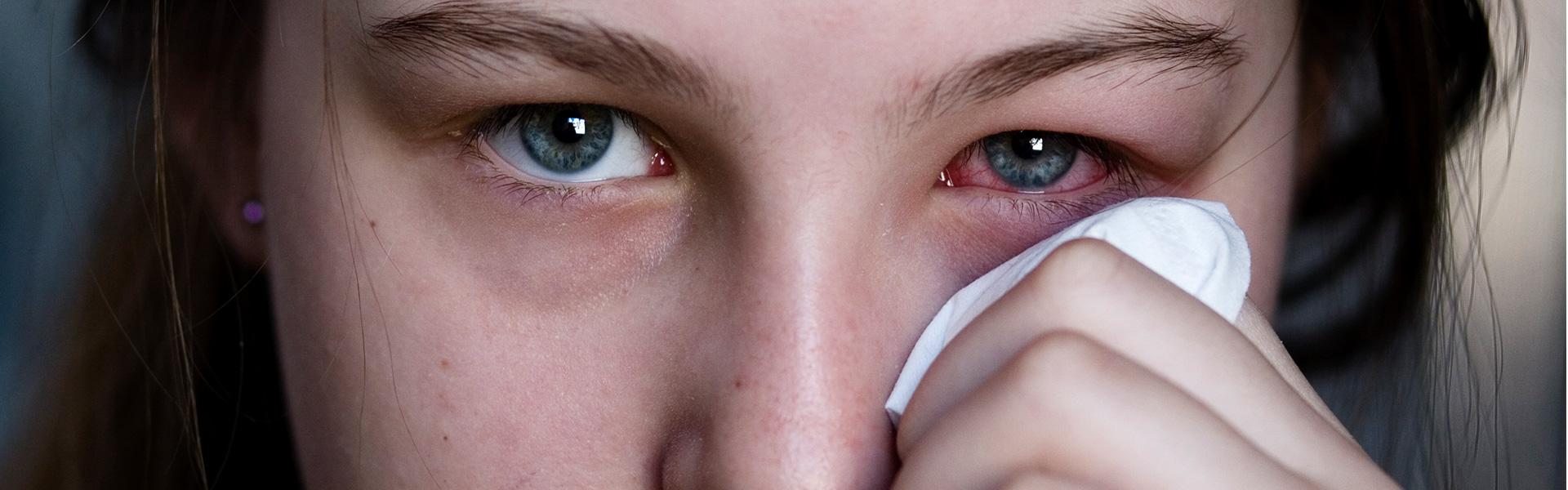 Oczy zwierciadłem duszy i… alergii!